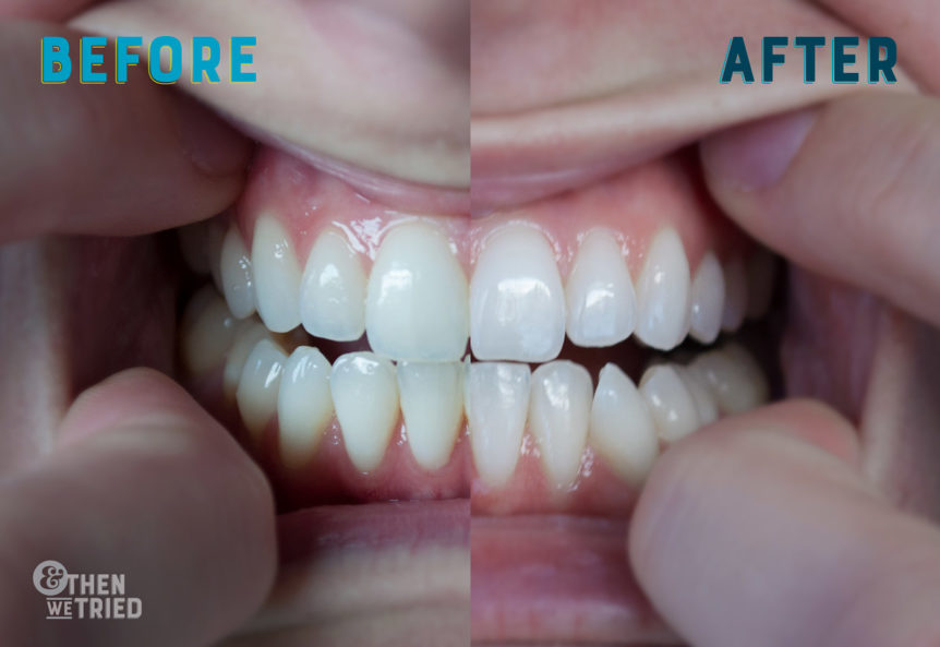 Smile Brilliant Review, our path to the whitest teeth ever and our Smile Brilliant before and after